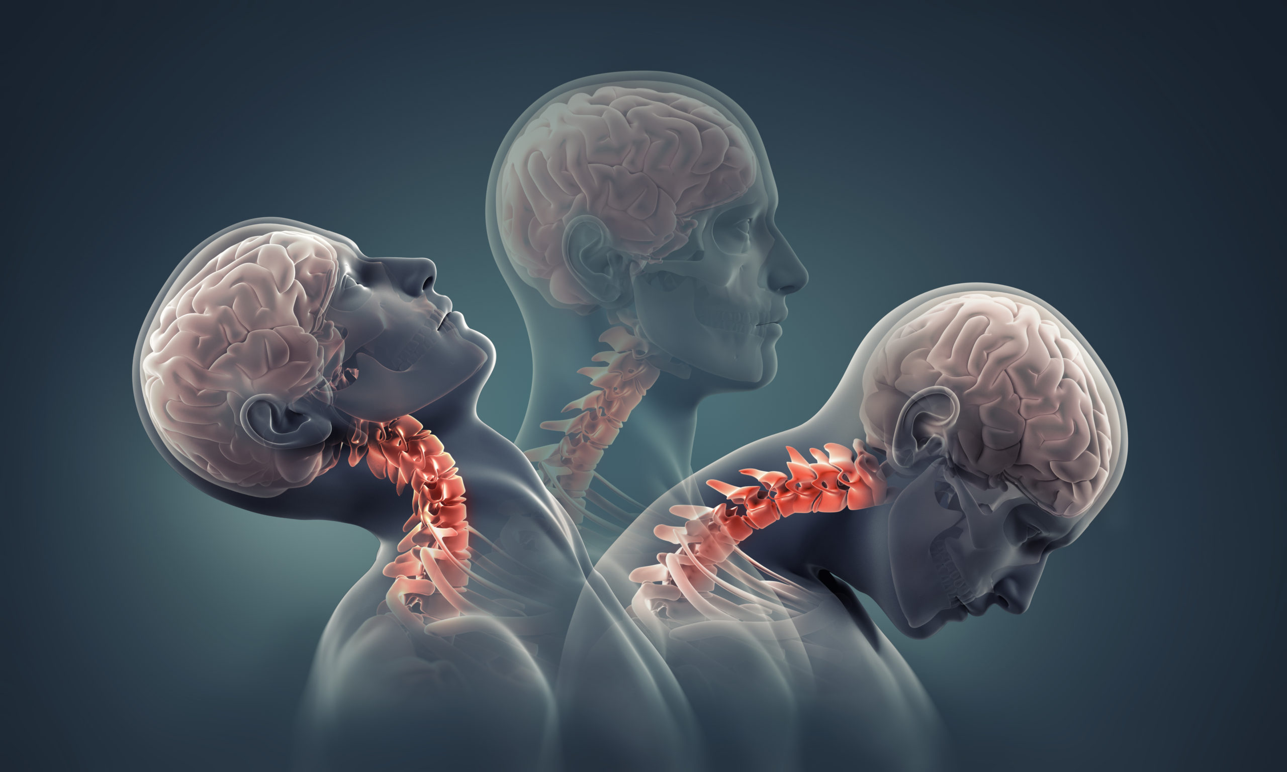 Overview: Craniocervical Instability and Related Disorders